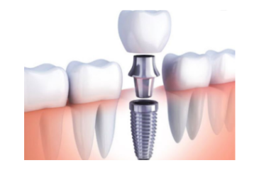 Dental_Implant_distributor_of_German_brand_looking_for_Investor_743